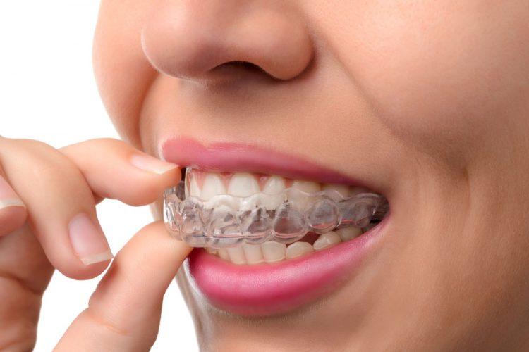 Alexandria Invisalign Dentist
